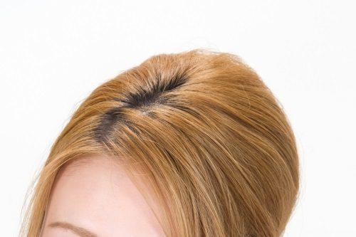 プリン状態の髪